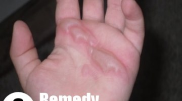 8 Remedy For Minor Burns