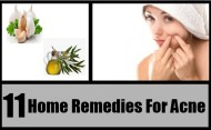 Top 11 Home Remedies For Acne