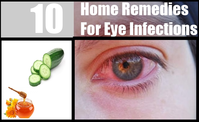 Natural Herbs For Eye Infections