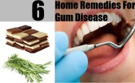 6 Easy Gum Disease Remedies at Home