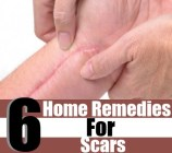 6 Best Home Remedies For Scars
