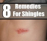 8 Effective Home Remedies For Shingles