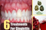 6 Treatments For Gingivitis