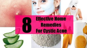 8 Effective Home Remedies For Cystic Acne