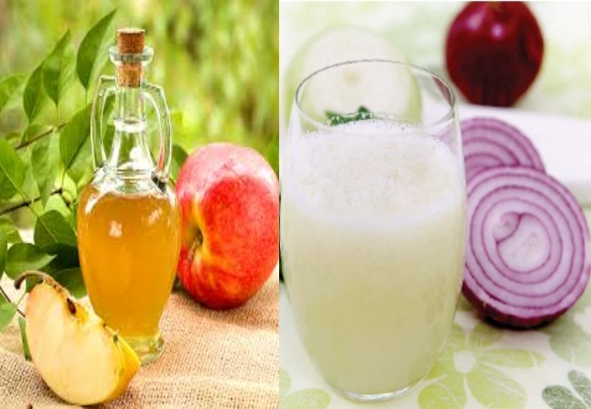 Apple Cider Vinegar And Onion Juice