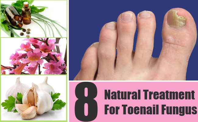Natural Treatment For Toenail Fungus