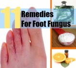 11 Remedies For Foot Fungus