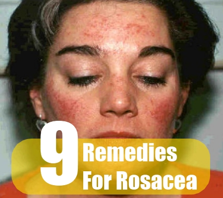 On Face Home Remedy Redness For