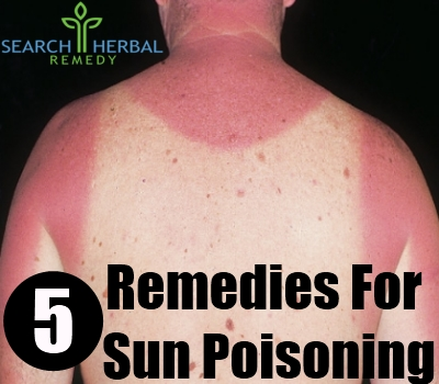 Natural Treatments For Sun Poisoning