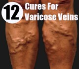 12 Cures for Varicose Veins