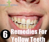 6 Remedies For Yellow Teeth