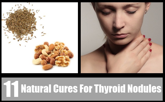 Top 11 Natural Cures For Thyroid Nodules