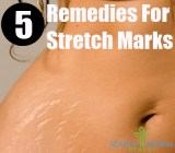 5 Remedies For Stretch Marks