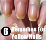 6 Remedies For Yellow Nails