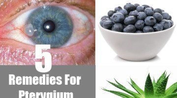5 Remedies For Pterygium