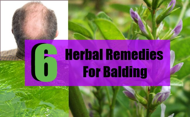 Herbal Remedies For Balding