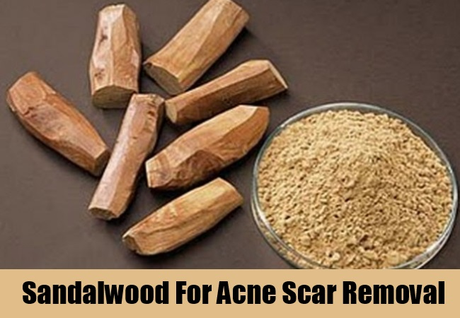 Sandalwood For Acne Scar Removal