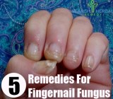 5 Remedies For Fingernail Fungus