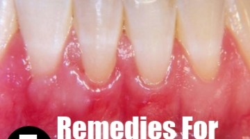 5 Remedies For Receding Gums
