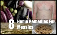 8 Home Remedies For Measles
