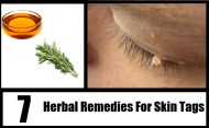 Top 7 Herbal Remedies For Skin Tags