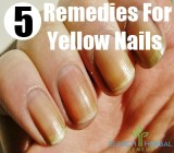 5 Remedies For Yellow Nails