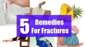 5 Remedies For Fractures