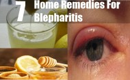 7 Home Remedies For Blepharitis