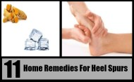 Top 11 Home Remedies For Heel Spurs