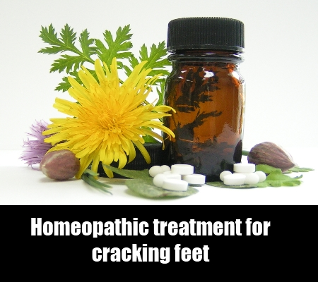Homeopathic treatment for itchy anus