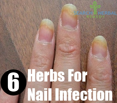 Natural Remedy Yeast Infection Skin