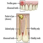 Natural Treatment For Abscessed Tooth