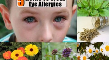 Eye Allergies