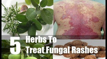 Fungal Rashes