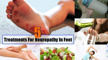 Neuropathy In Feet