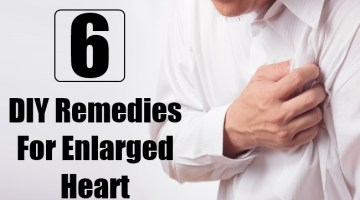 DIY Remedies For Enlarged Heart