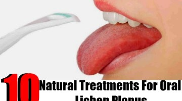 10 Natural Treatments For Oral Lichen Planus