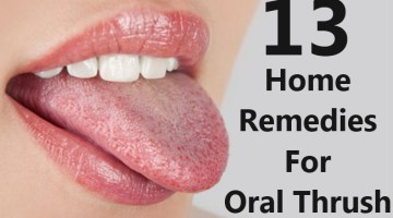 Home Remedies For Oral Thrush