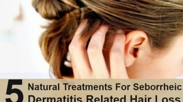Natural Treatments For Seborrheic Dermatitis Related Hair Loss