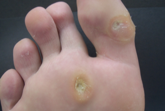 how to get rid of bunions home remedy