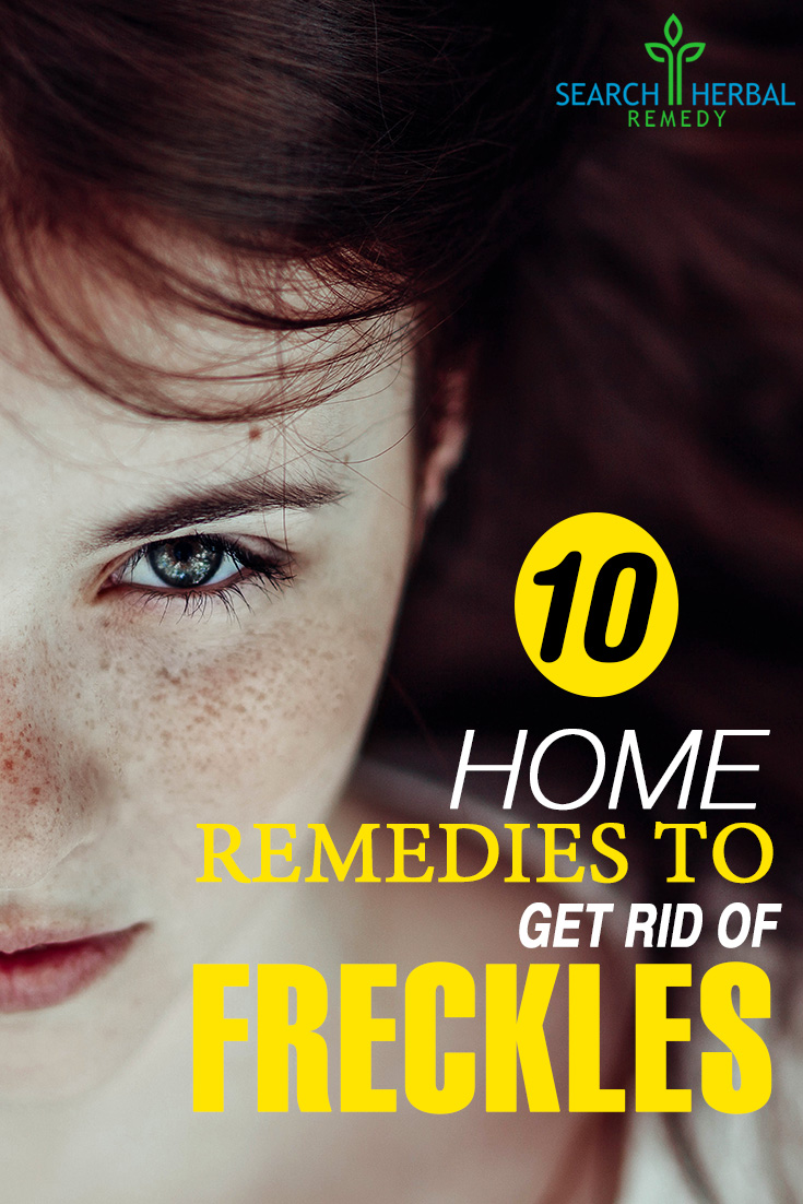 10 Home Remedies To Get Rid Of Freckles