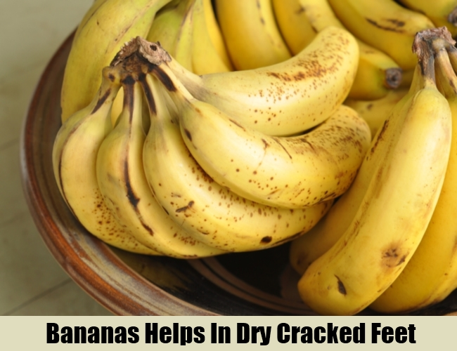 Bananas Helps In Dry Cracked Feet