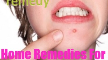 Home Remedies For Skin Boils