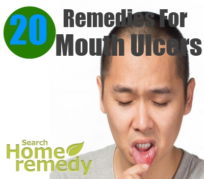 20 Home Remedies For Mouth Ulcers