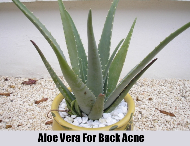 Aloe Vera For Back Acne