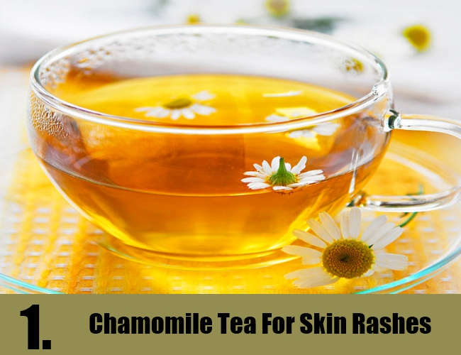Chamomile Tea For Skin Rashes