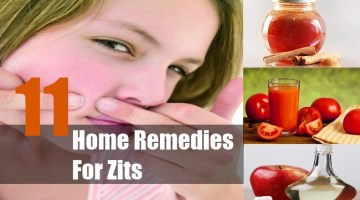 Home Remedies For Zits