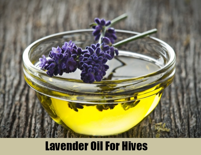 Lavender Oil For Hives