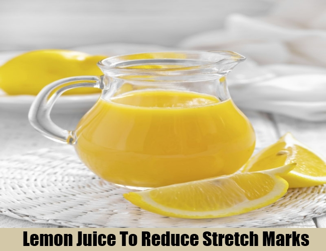 Lemon Juice To Reduce Stretch Marks