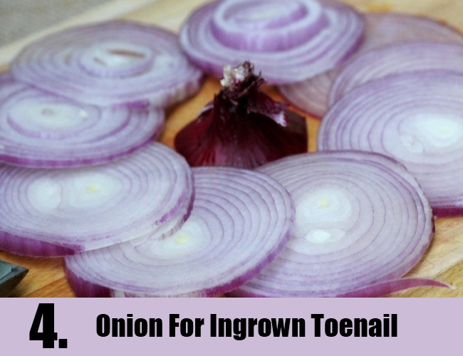 Onion For Ingrown Toenail